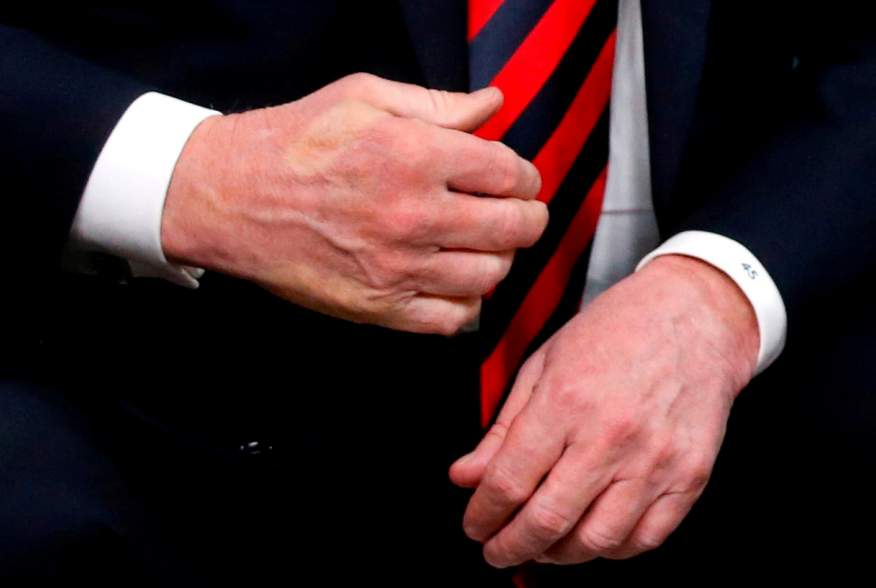 The imprint of French President Emmanuel Macron's thumb can be seen across the back of U.S. President Donald Trump's hand after they shook hands during a bilateral meeting at the G7 Summit in in Charlevoix, Quebec, Canada, June 8, 2018.