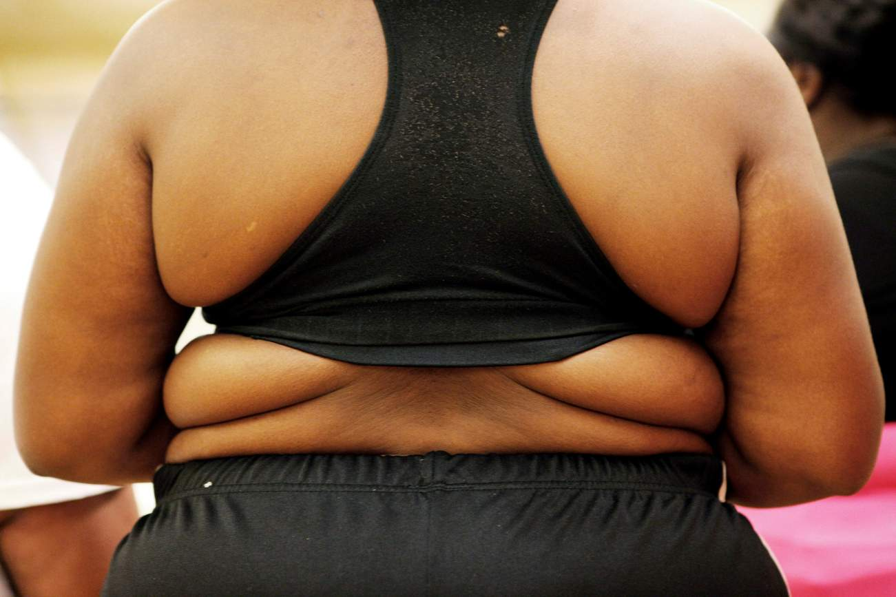 Obesity Is One of the Most Preventable Cause of U.S. Deaths