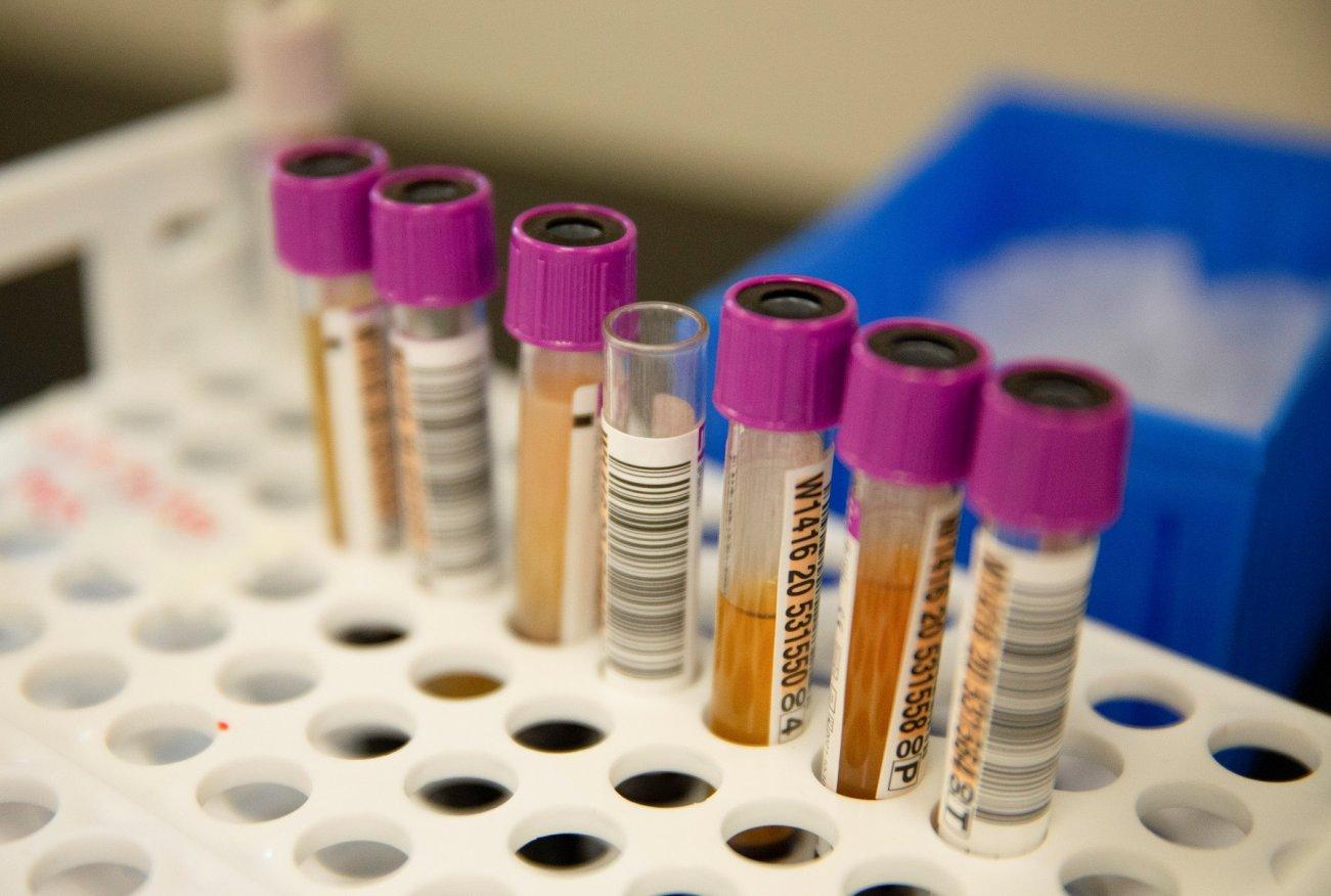 Study Shows Antibodies Might Make Coronavirus Patients Sicker